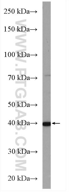 WDR74 Antibody in Western Blot (WB)