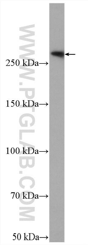 FLNB Antibody in Western Blot (WB)