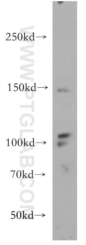 VEGFR3 Antibody in Western Blot (WB)