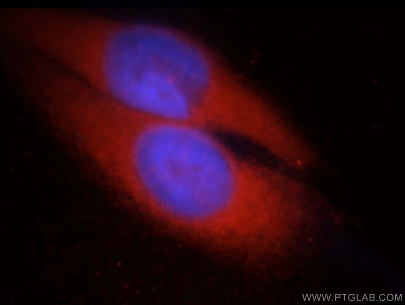 CHAT Antibody in Immunofluorescence (IF)
