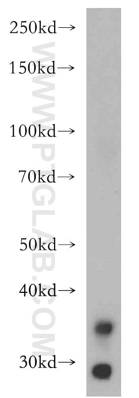 LIMS1 Antibody in Western Blot (WB)