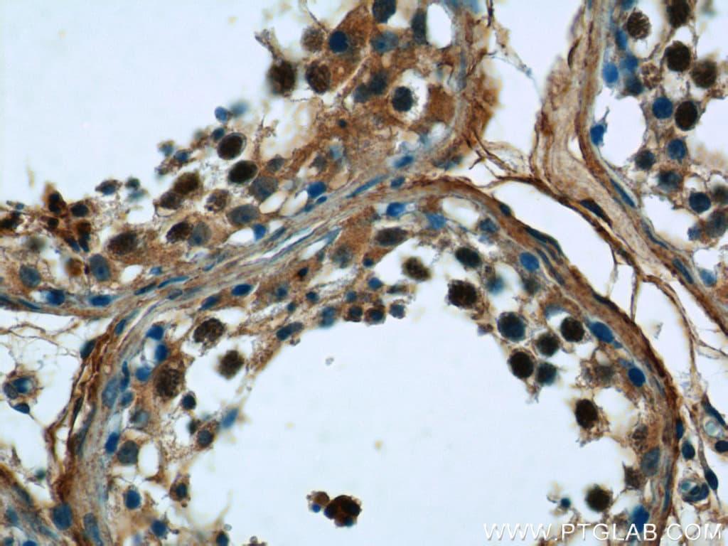 KIFC1 Antibody in Immunohistochemistry (Paraffin) (IHC (P))