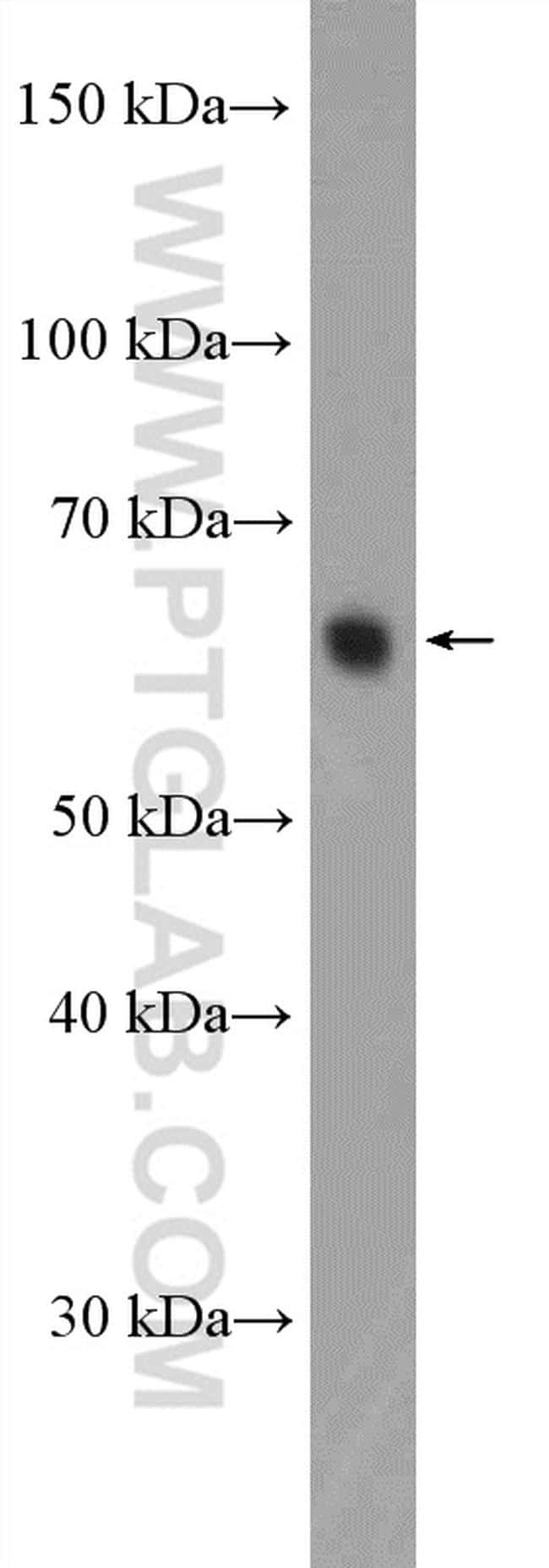 KIFC1 Antibody in Western Blot (WB)