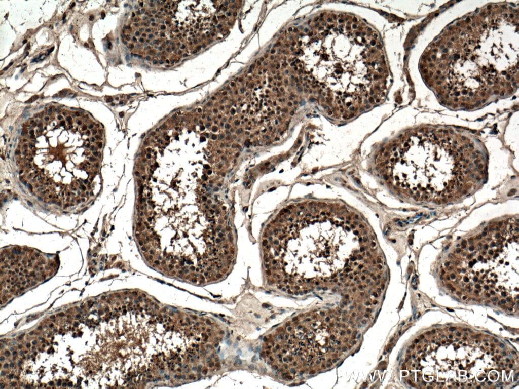 CLASP1 Antibody in Immunohistochemistry (Paraffin) (IHC (P))