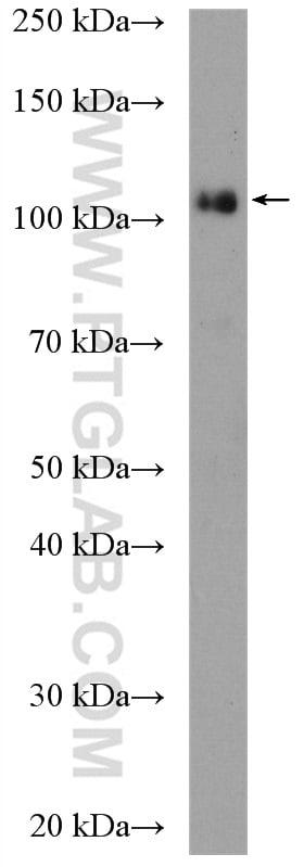 KDM1 Antibody in Western Blot (WB)