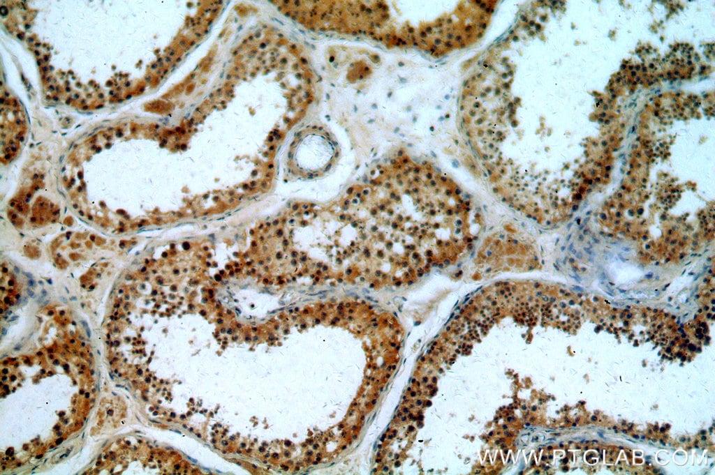 CCDC42 Antibody in Immunohistochemistry (Paraffin) (IHC (P))