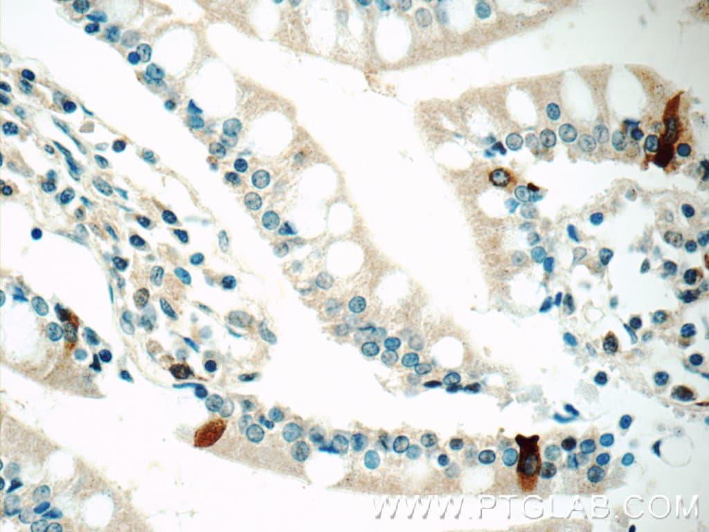 DAX-1 Antibody in Immunohistochemistry (Paraffin) (IHC (P))