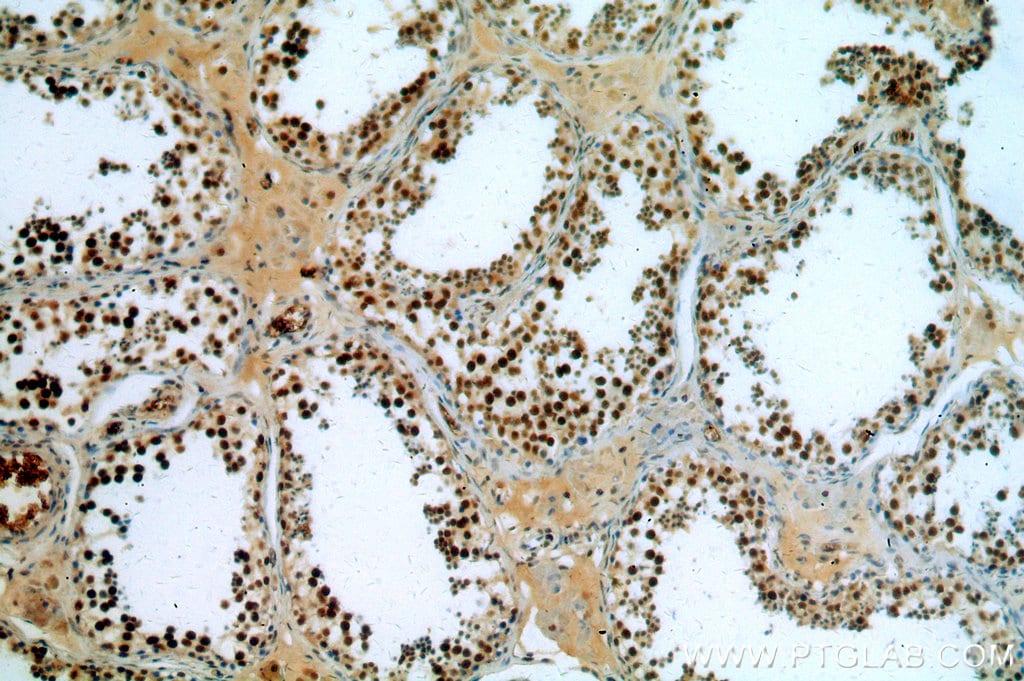 NSUN2 Antibody in Immunohistochemistry (Paraffin) (IHC (P))