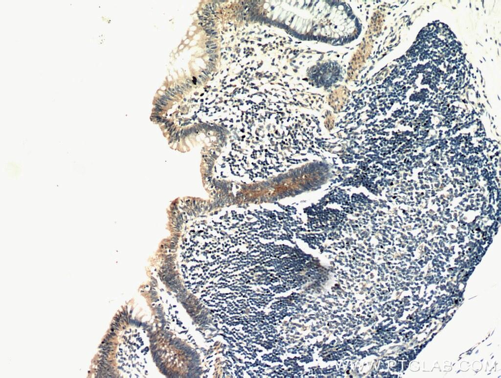 CCDC93 Antibody in Immunohistochemistry (Paraffin) (IHC (P))