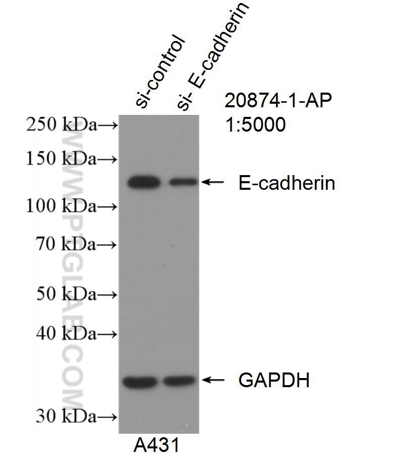 E-cadherin Antibody in Western Blot (WB)