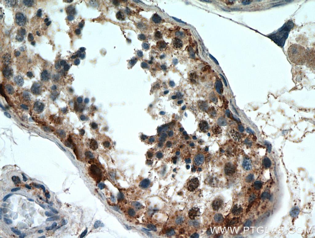 WDR37 Antibody in Immunohistochemistry (Paraffin) (IHC (P))