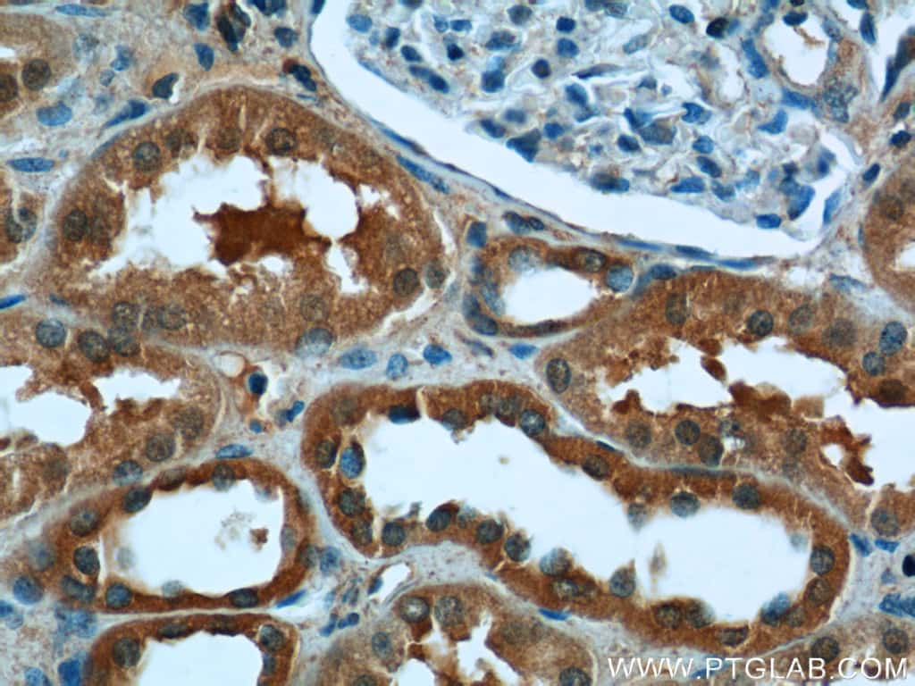 CYP11B2 Antibody in Immunohistochemistry (Paraffin) (IHC (P))