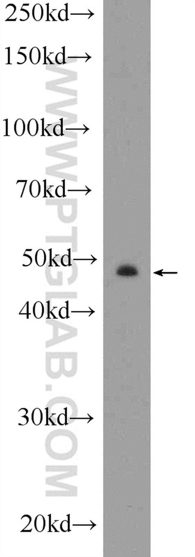 CYP11B2 Antibody in Western Blot (WB)