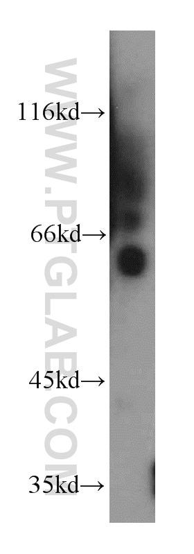 KLF5 Antibody in Western Blot (WB)