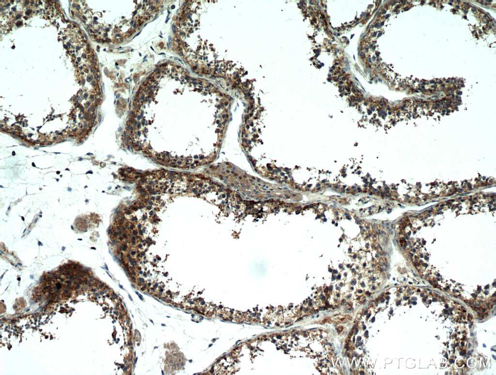 PDXDC1 Antibody in Immunohistochemistry (Paraffin) (IHC (P))