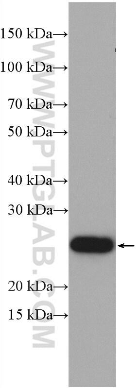 CHCHD4 Antibody in Western Blot (WB)