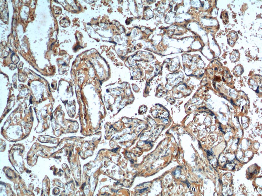 DKK1 Antibody in Immunohistochemistry (Paraffin) (IHC (P))