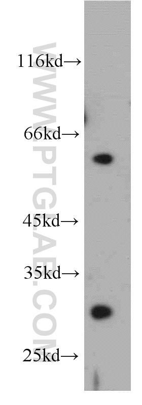 DKK1 Antibody in Western Blot (WB)