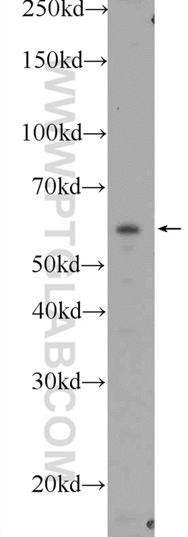 BBS1 Antibody in Western Blot (WB)