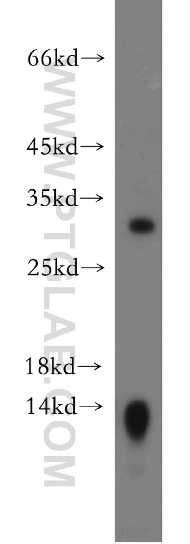 Claudin 18 Antibody in Western Blot (WB)