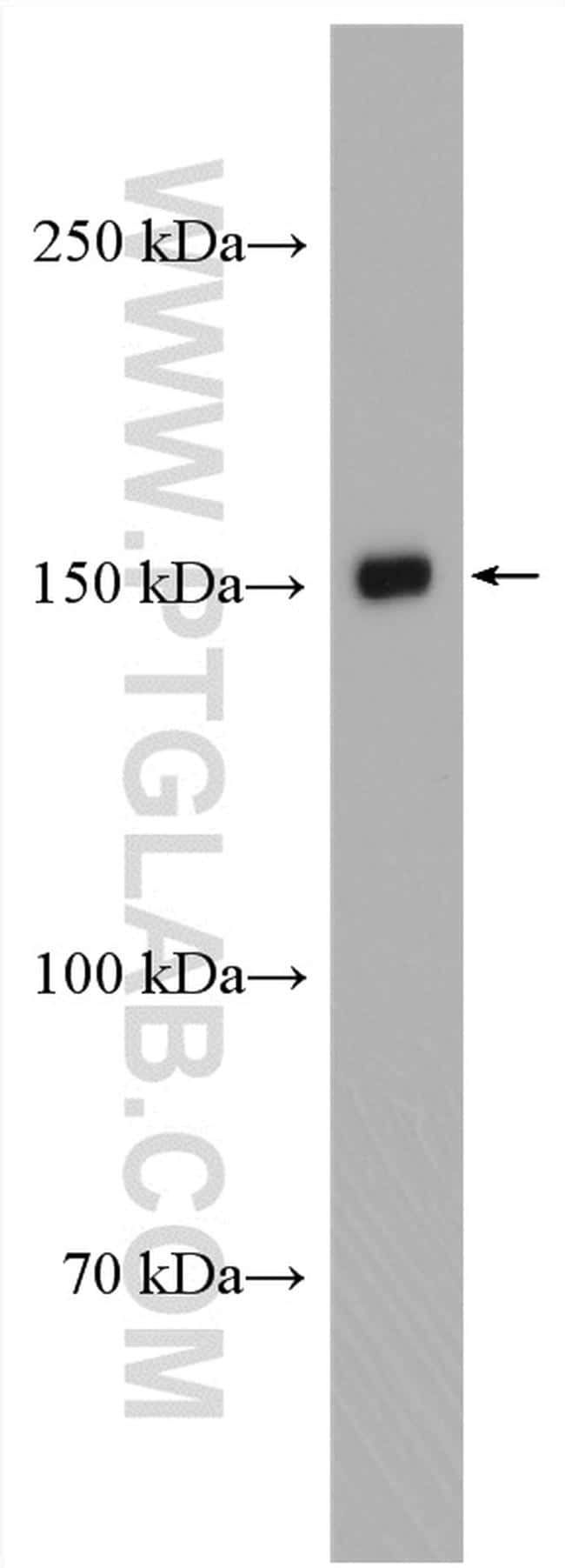 KIAA1199 Antibody in Western Blot (WB)