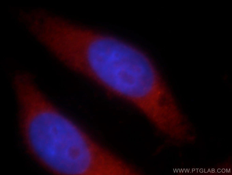LARS Antibody in Immunofluorescence (IF)