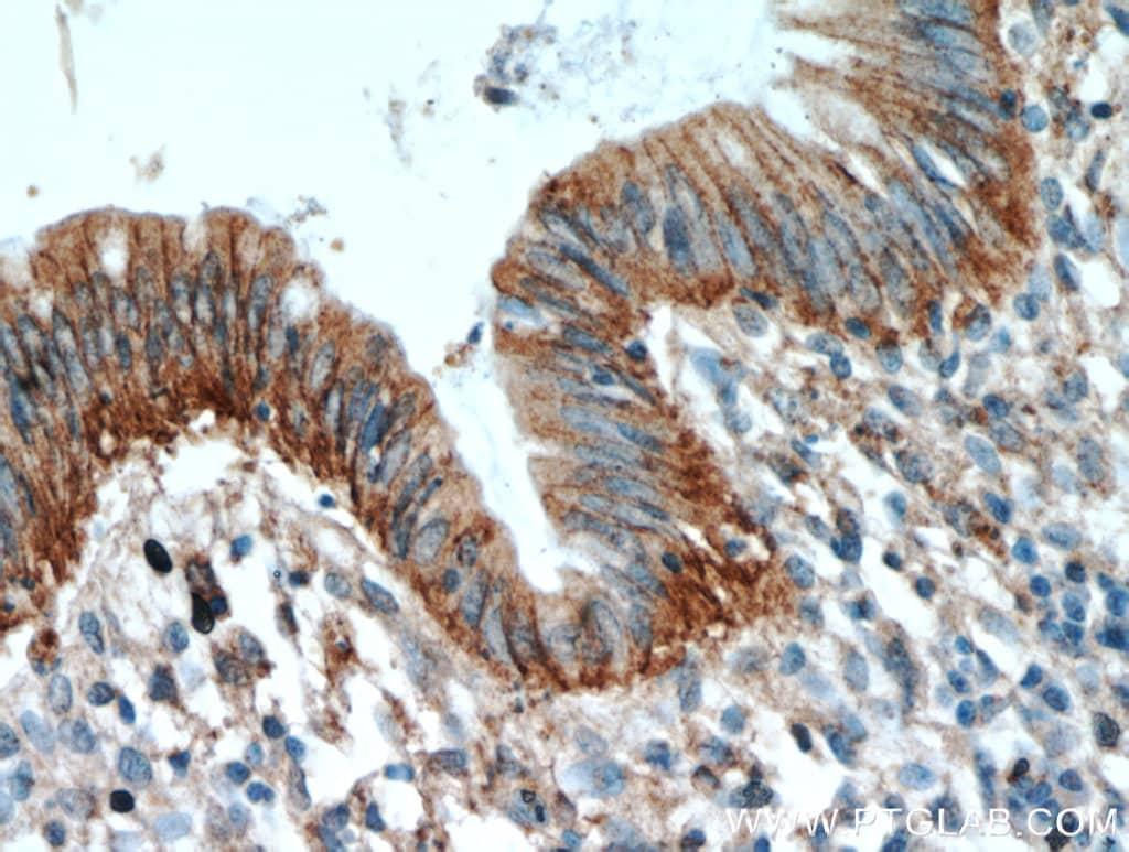 LARS Antibody in Immunohistochemistry (Paraffin) (IHC (P))