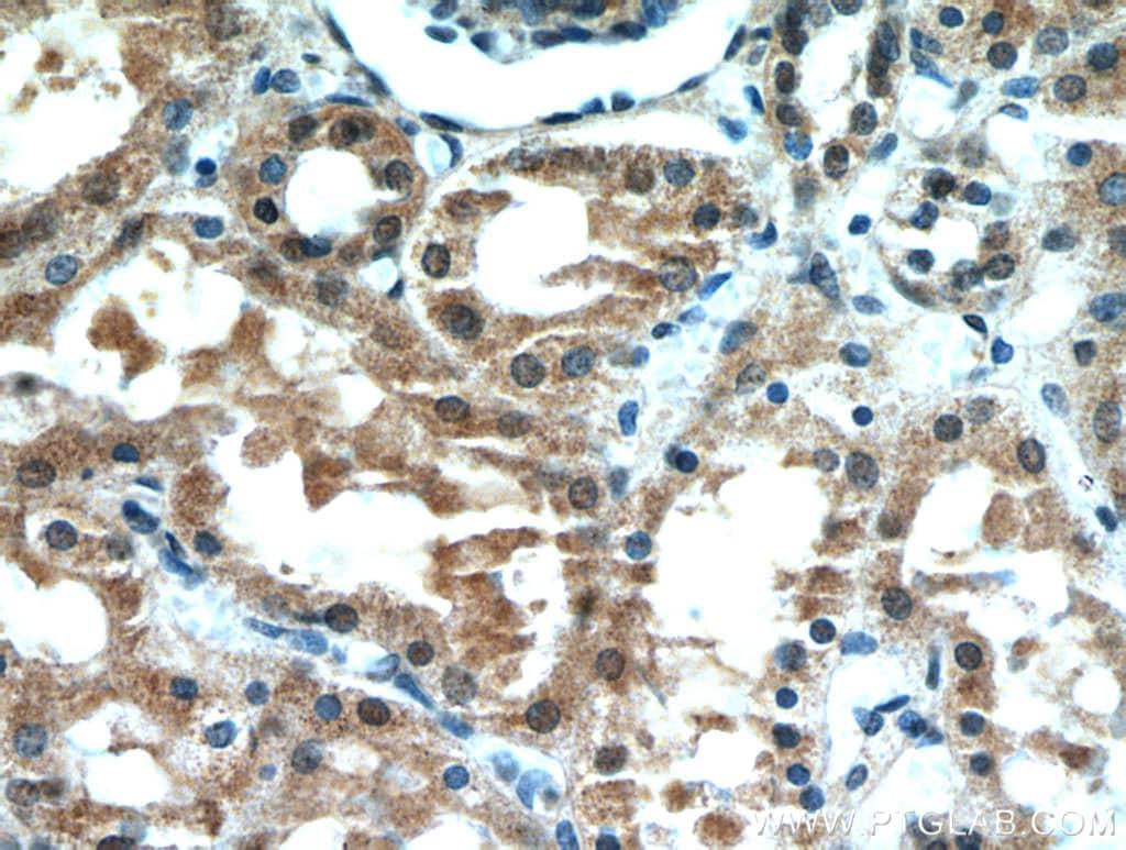 CBLL1 Antibody in Immunohistochemistry (Paraffin) (IHC (P))