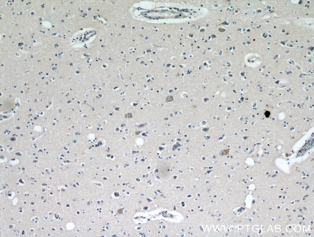 KIF5A Antibody in Immunohistochemistry (Paraffin) (IHC (P))