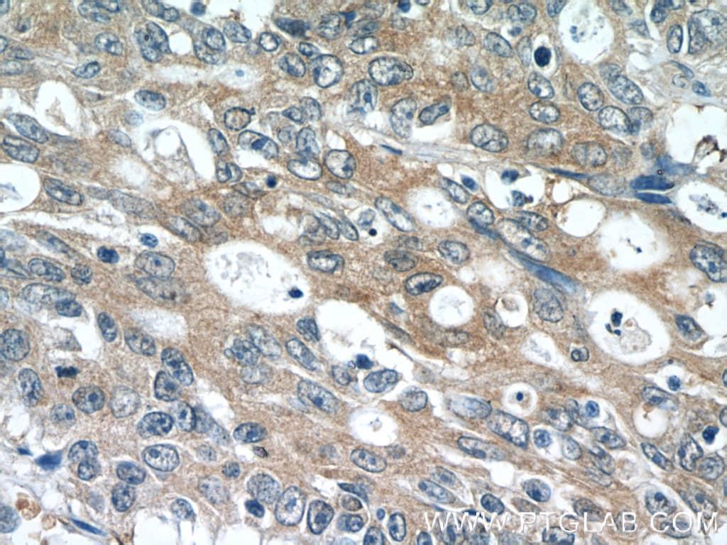 PDE6A Antibody in Immunohistochemistry (Paraffin) (IHC (P))