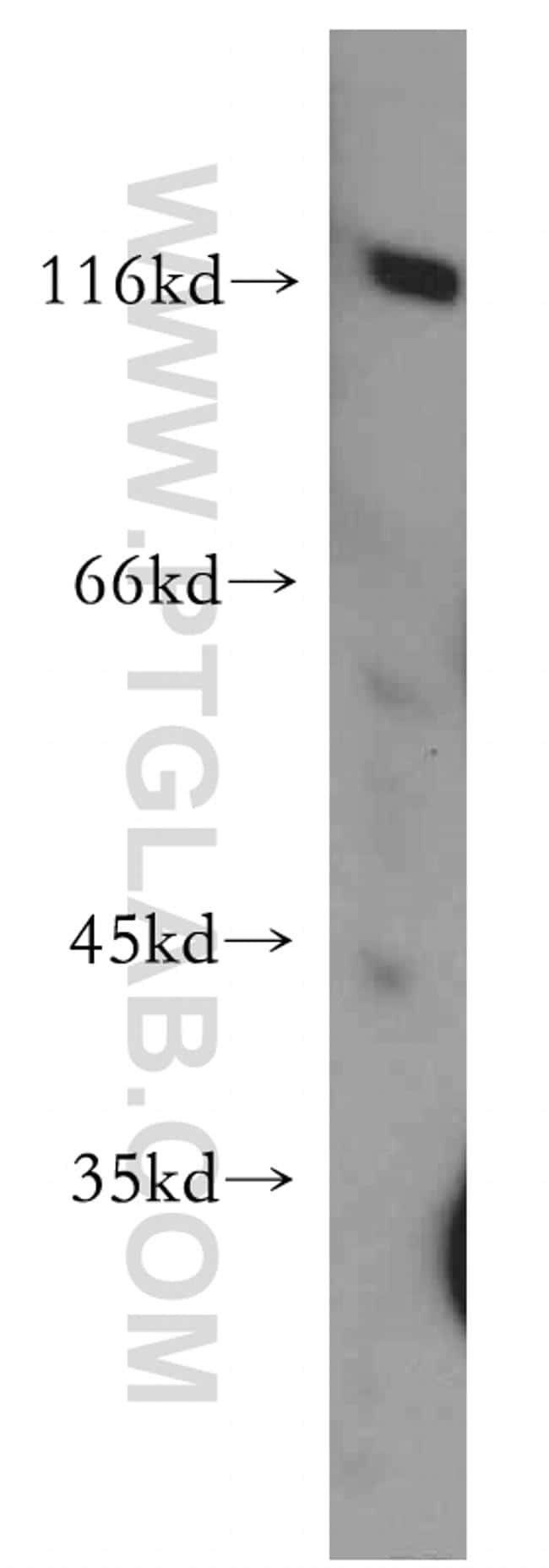 PDE6A Antibody in Western Blot (WB)
