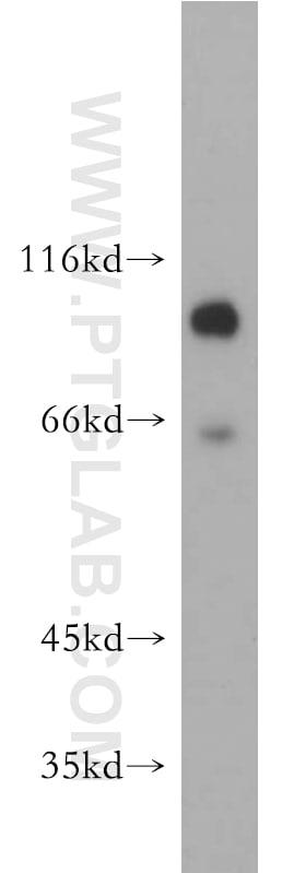EPS15R Antibody in Western Blot (WB)