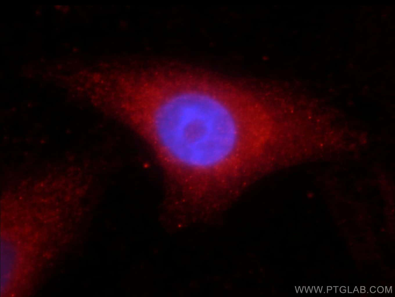 Catalase Antibody in Immunofluorescence (IF)