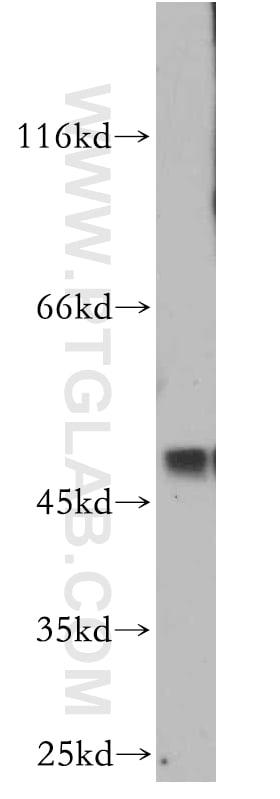 SMYD2 Antibody in Western Blot (WB)