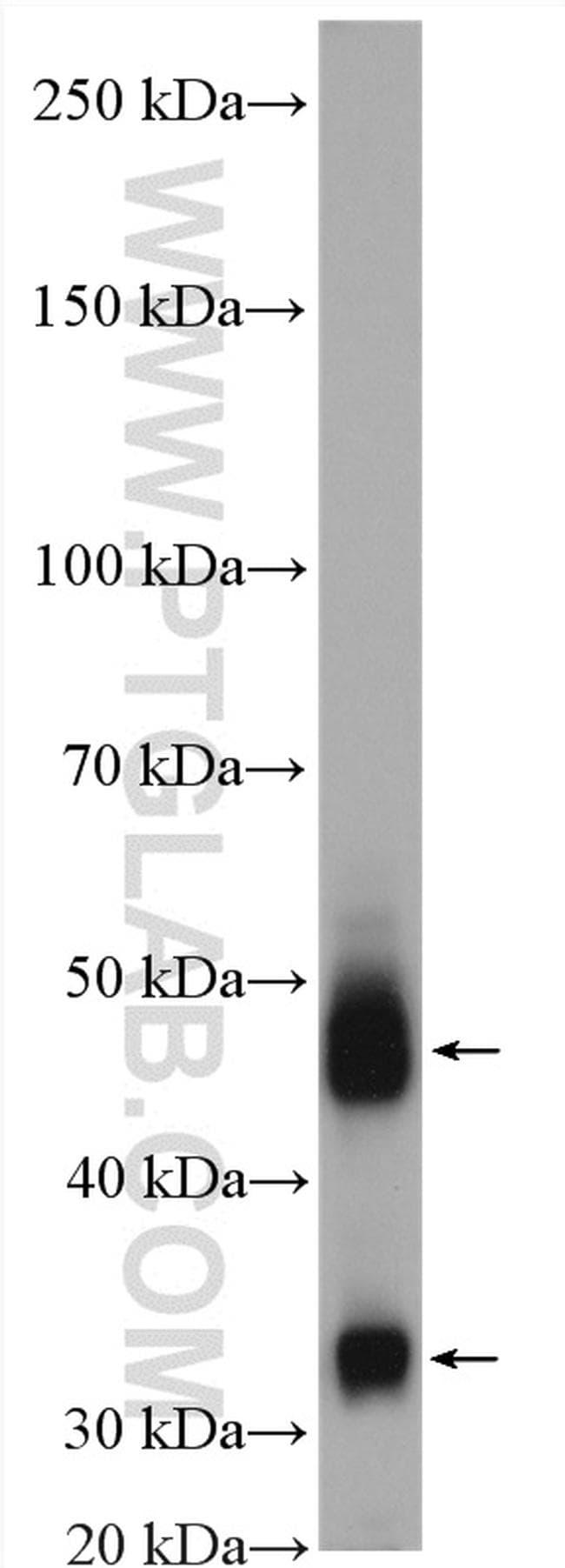 Cathepsin D Antibody in Western Blot (WB)