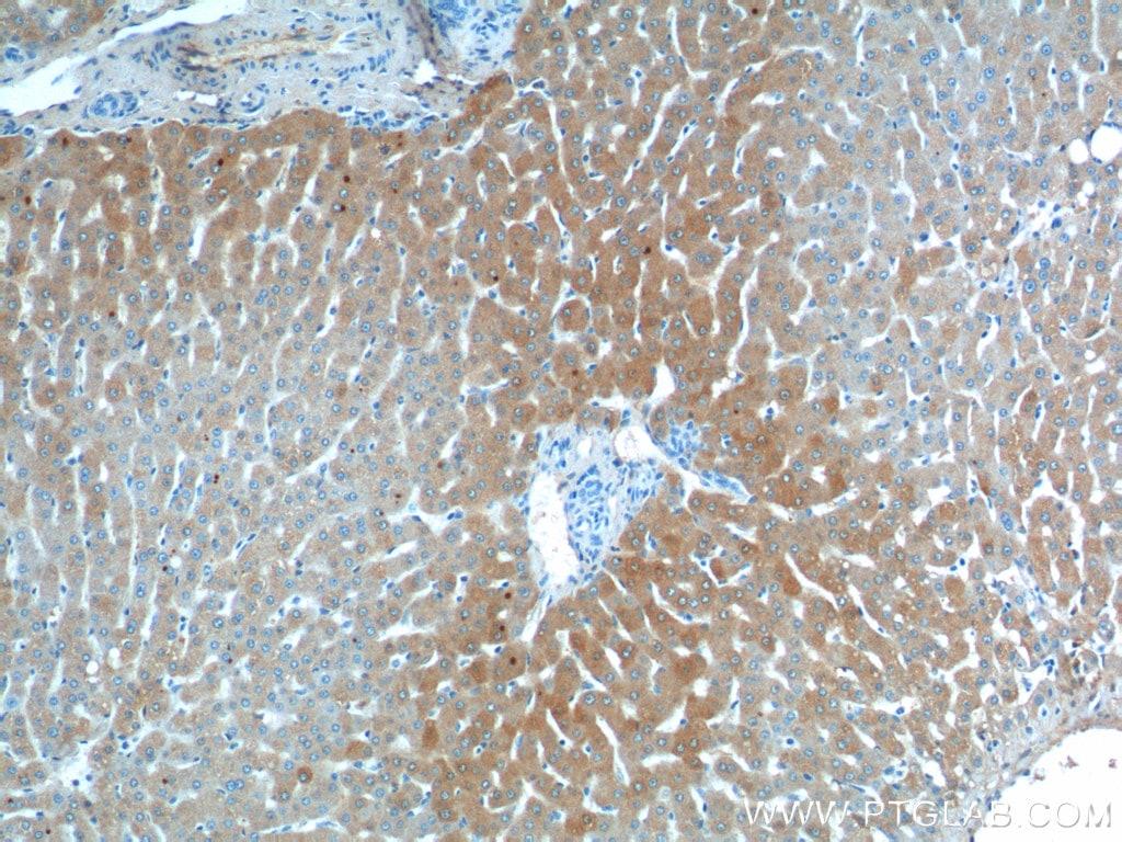 C3/C3b/C3c Antibody in Immunohistochemistry (Paraffin) (IHC (P))