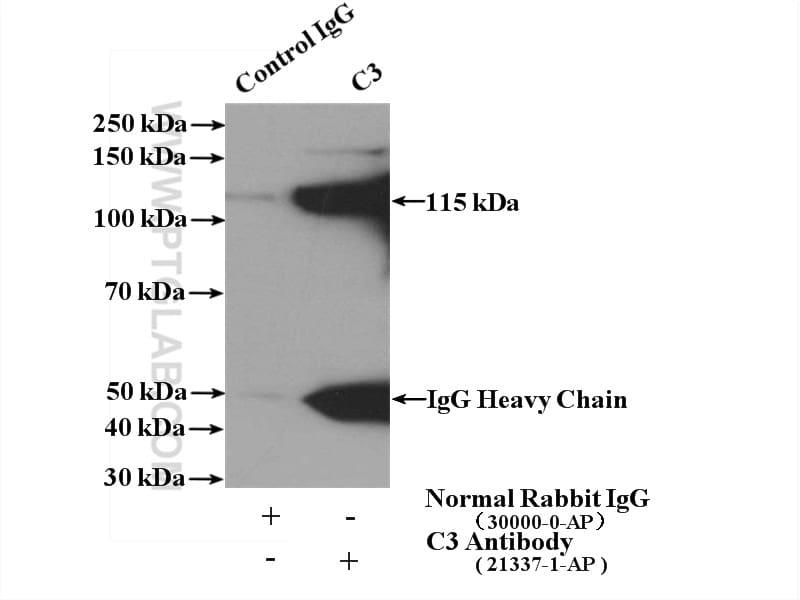 C3/C3b/C3c Antibody in Immunoprecipitation (IP)