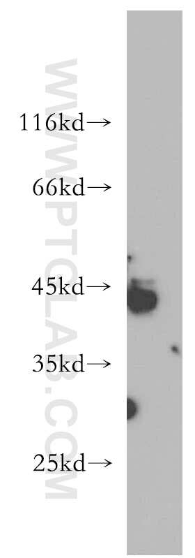 RNF150 Antibody in Western Blot (WB)