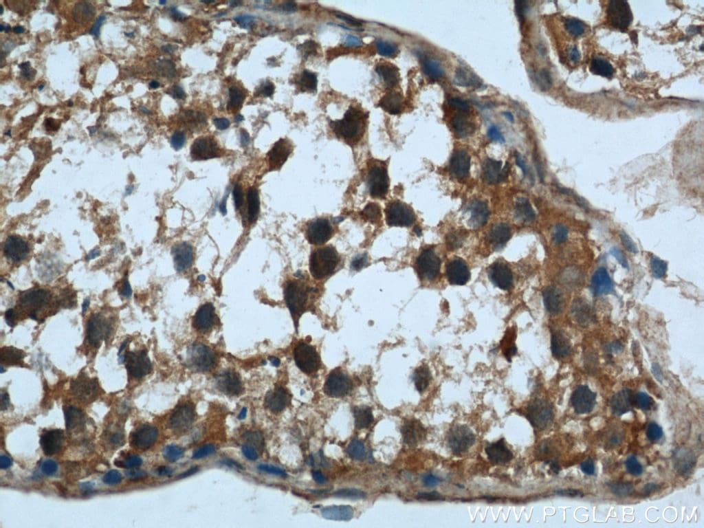 Rubicon Antibody in Immunohistochemistry (Paraffin) (IHC (P))