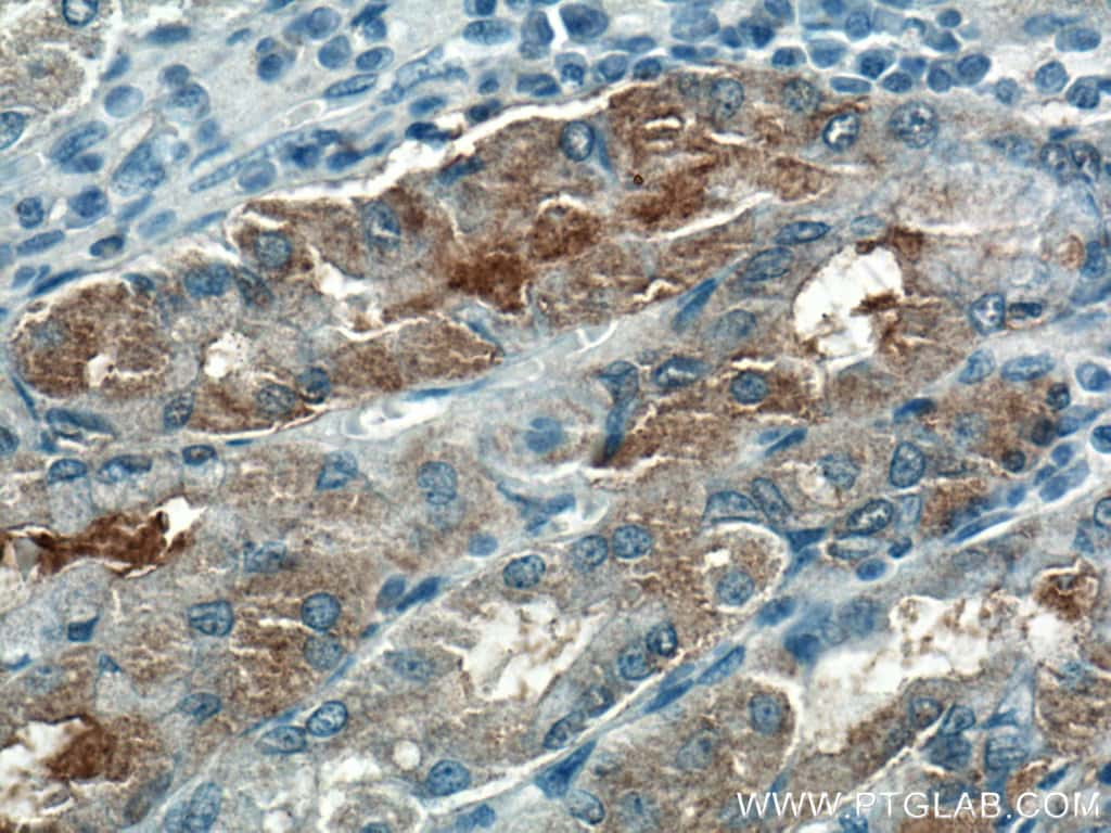 VANGL2 Antibody in Immunohistochemistry (Paraffin) (IHC (P))