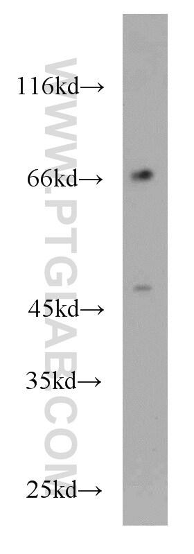 KLRF1 Antibody in Western Blot (WB)