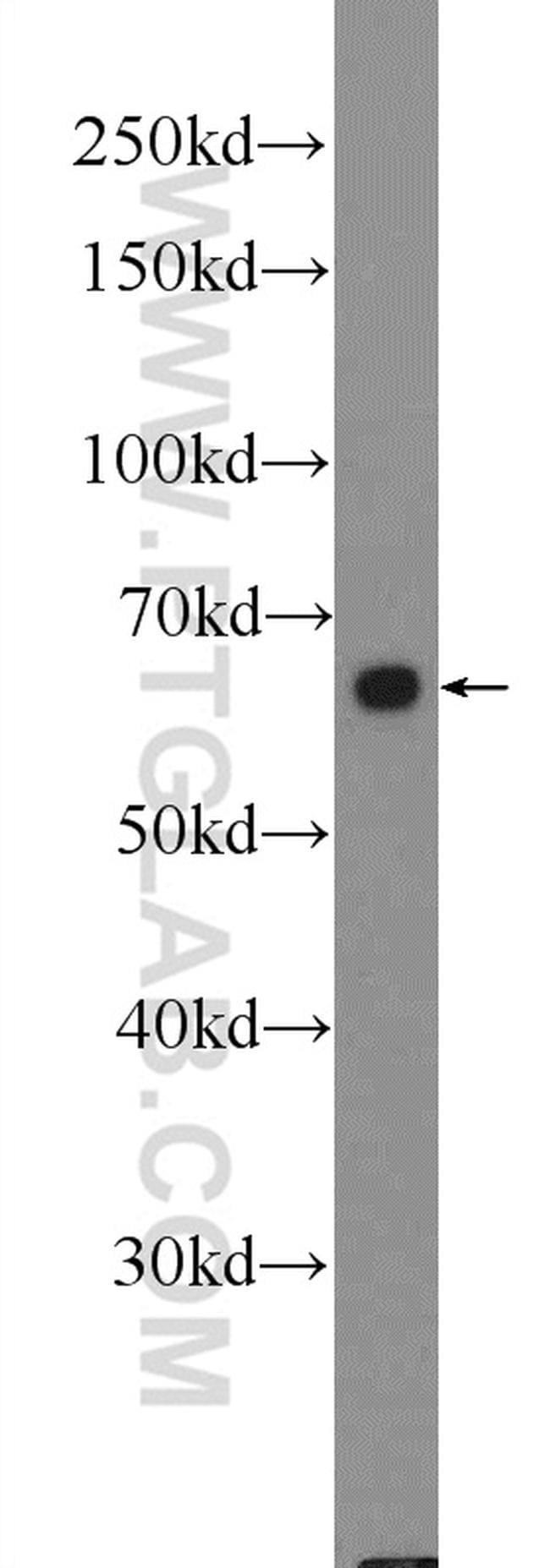 FZD5 Antibody in Western Blot (WB)