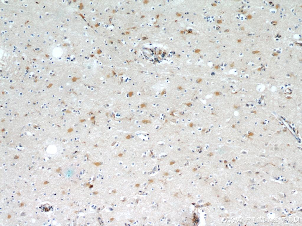 OGFOD2 Antibody in Immunohistochemistry (Paraffin) (IHC (P))