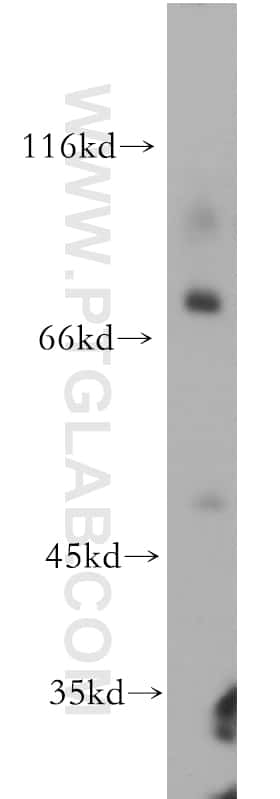 IL1RAPL1 Antibody in Western Blot (WB)