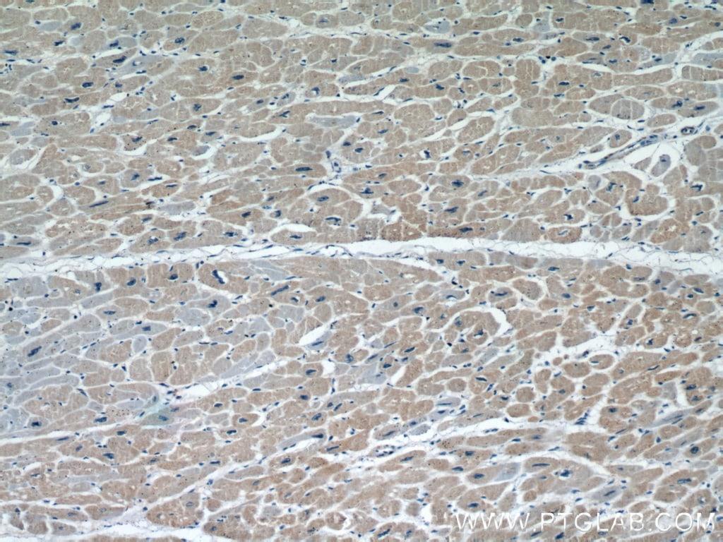 FHL2 Antibody in Immunohistochemistry (Paraffin) (IHC (P))