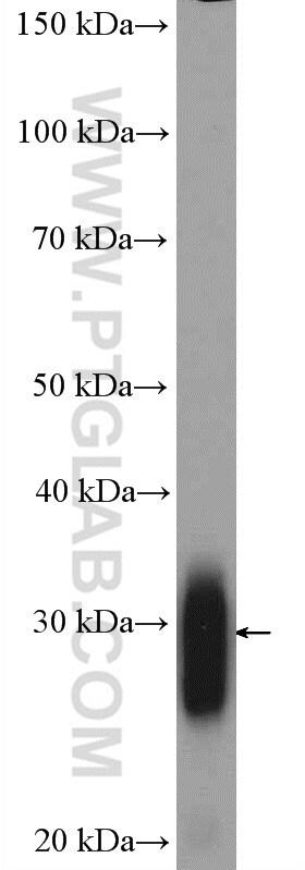 FHL2 Antibody in Western Blot (WB)