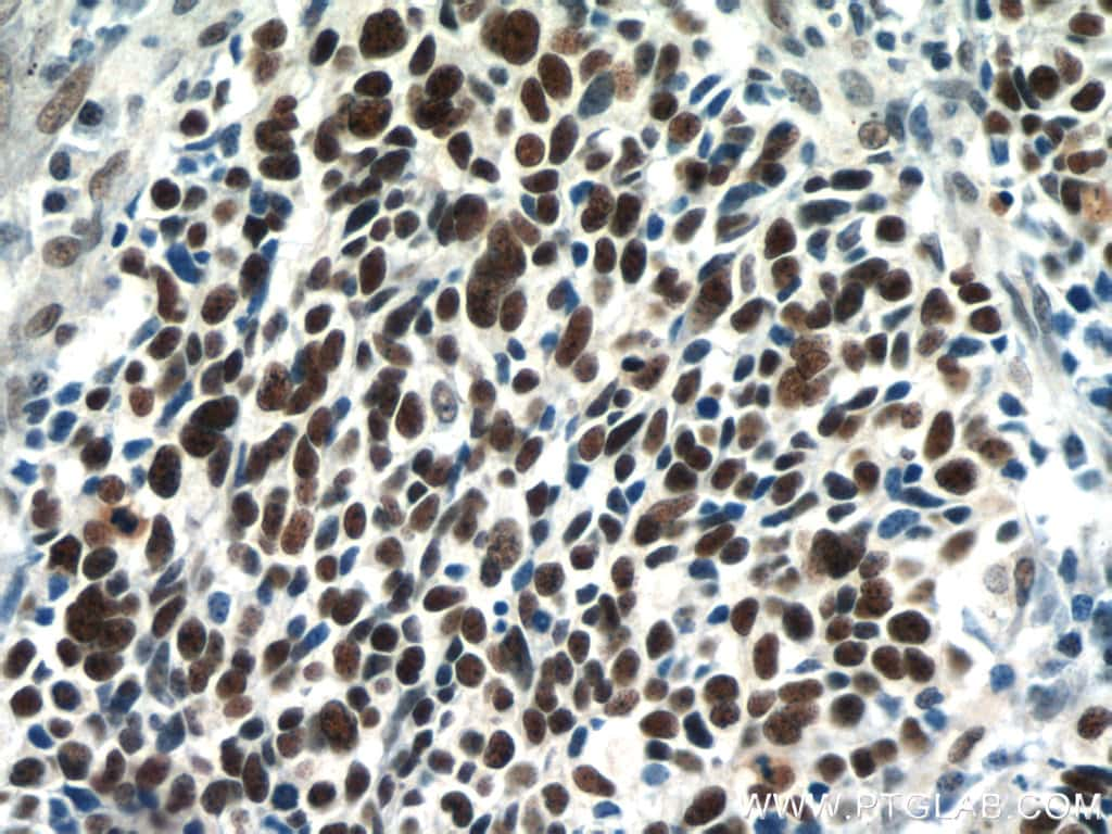 SMARCA4/BRG1 Antibody in Immunohistochemistry (Paraffin) (IHC (P))
