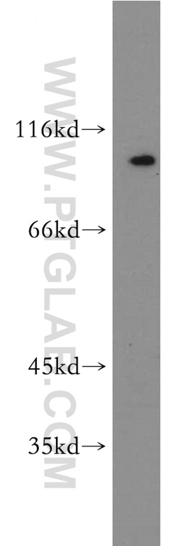 SERPINB10 Antibody in Western Blot (WB)