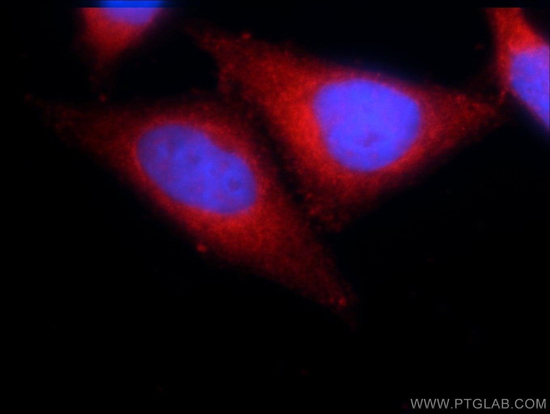 CARD11 Antibody in Immunocytochemistry (ICC/IF)