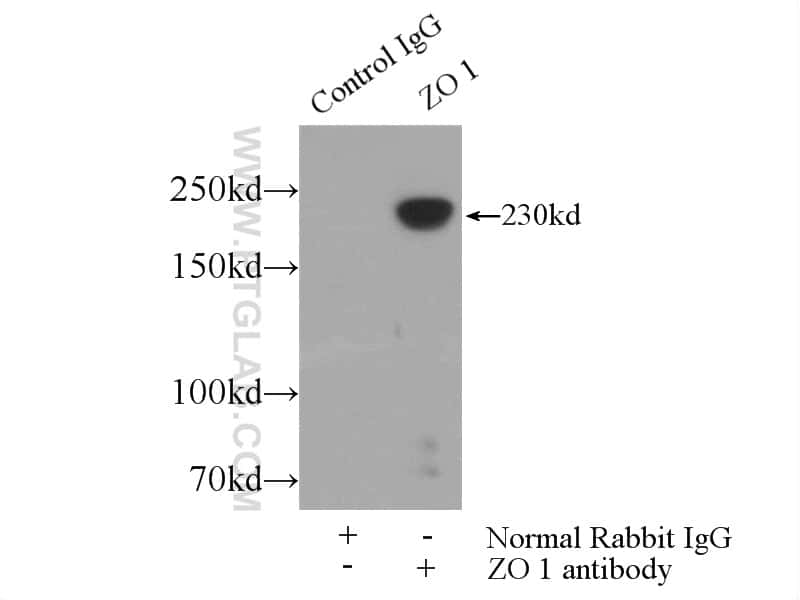 ZO-1 Antibody in Immunoprecipitation (IP)